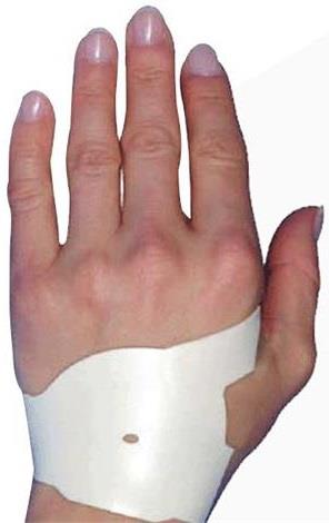 Carpal Tunnel Wrist Support to treat Carpal Tunnel Syndrome