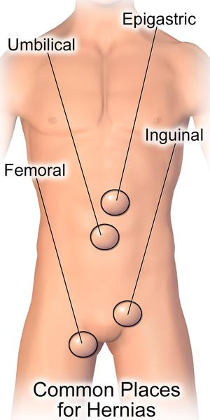 All About Hernia - Symptoms, Causes, and Cures