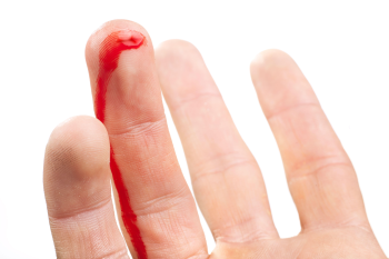 Treatment for finger injuries
